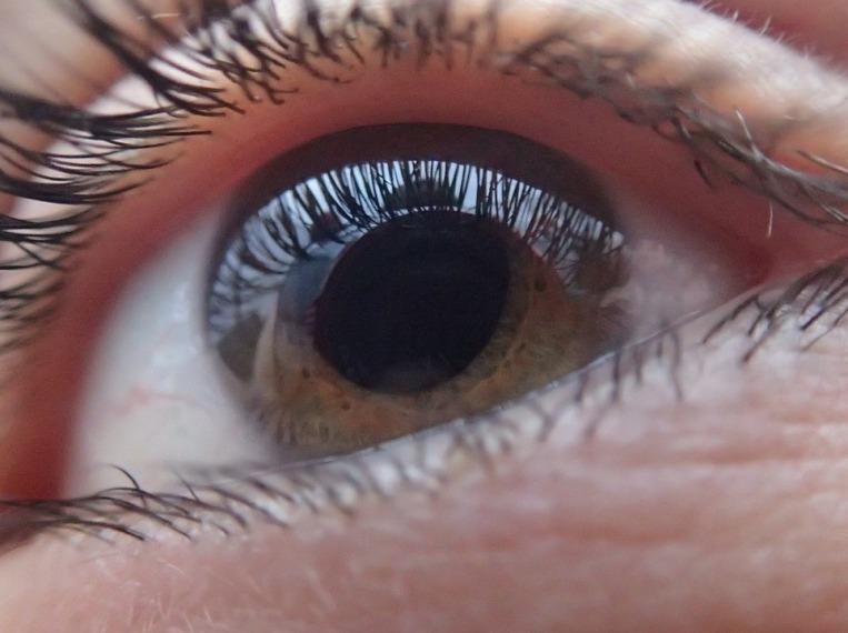 vörös pikkelyes foltok a szemhéjon