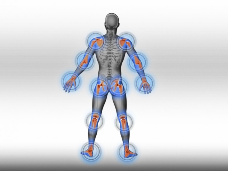 hogyan lehet gyorsan kezelni a rheumatoid arthritis a lábujj ízülete gyulladt, mint kezelni