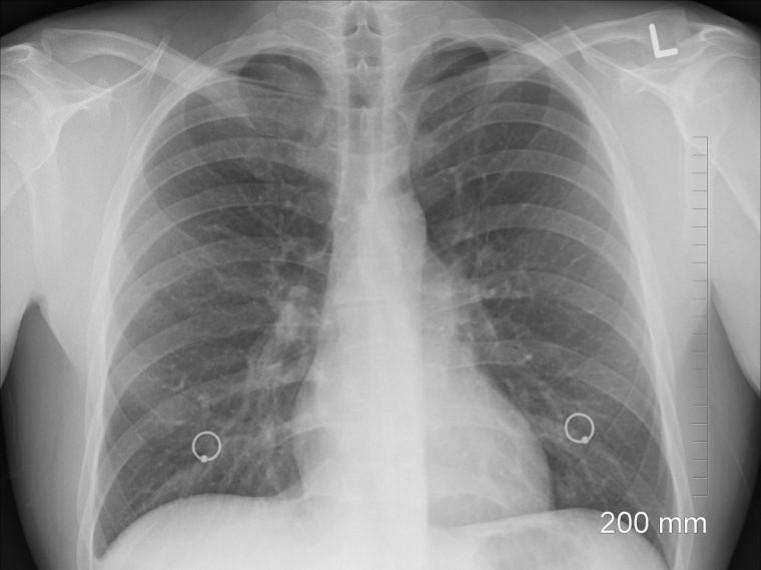 hogy leszokik-e a dohányzásról a tüdőrák miatt)
