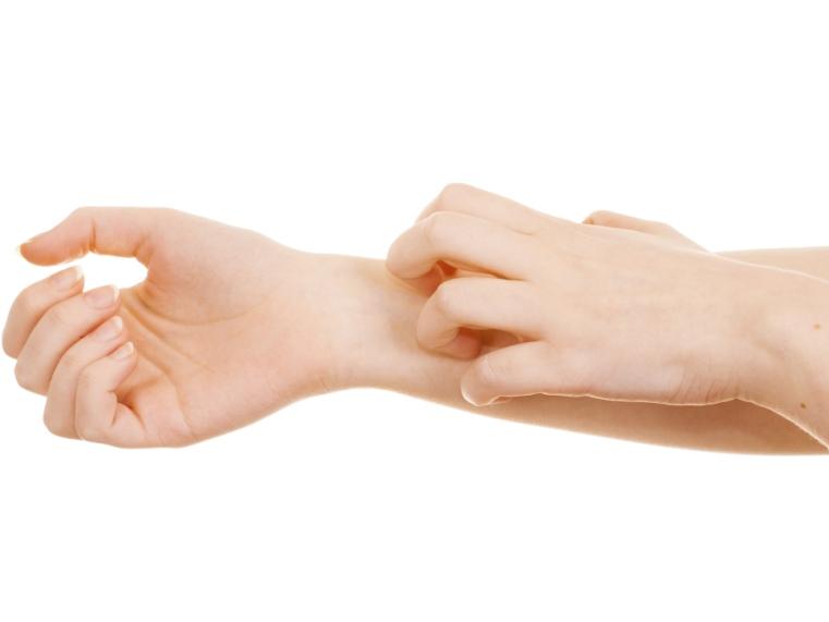 a láb és a tenyér pikkelysömörének kezelése